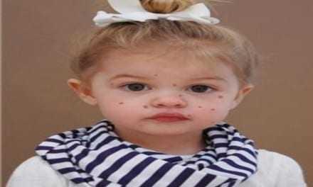 Ανεμοβλογιά: Τι πρέπει να γνωρίζετε γι' αυτή την συνηθισμένη παιδική ασθένεια