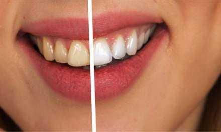 Αμερικάνικη μέλετη δείχνει ότι το ηλεκτρονικό τσιγάρο δεν προκαλεί κηλίδες στα δόντια όπως το κάπνισμα¨